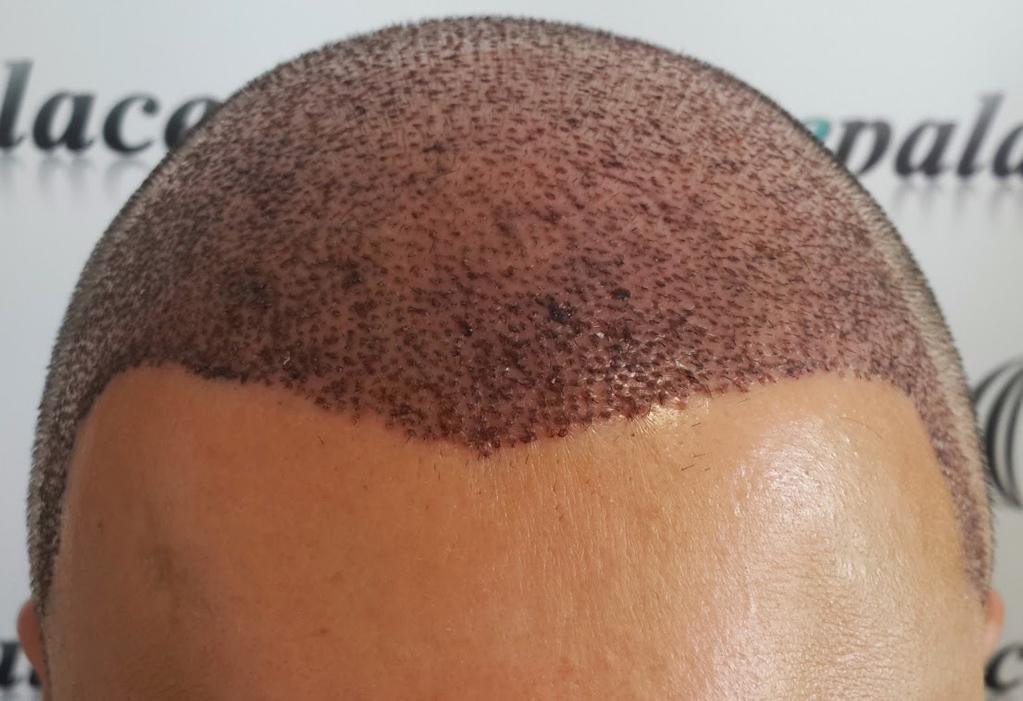 Saç dökülmesi artık kader olmaktan çıkıyor.